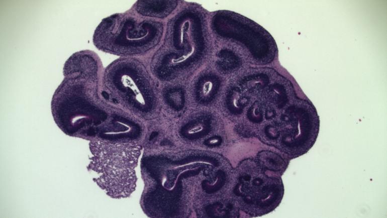 """Mini Brain"" Models Study Tumors & Treatments"