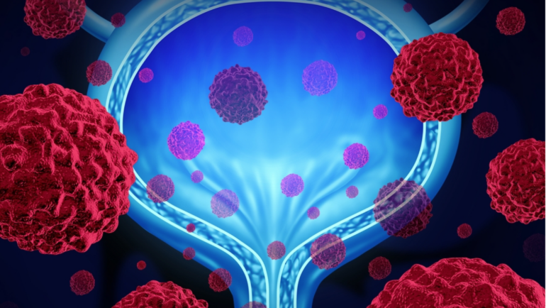 Potential New Treatments for Bladder Cancer