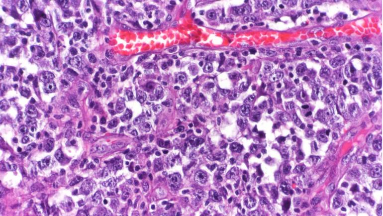 New Precision Medicine Approach to Lymphoma