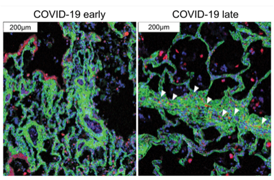 New Technique Provides Detailed Map of Lung Pathology in COVID-19