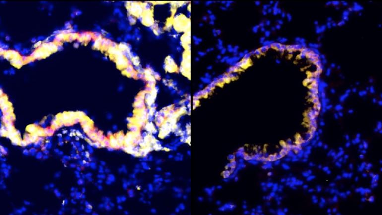 Reversing Immune Suppression in Tumors